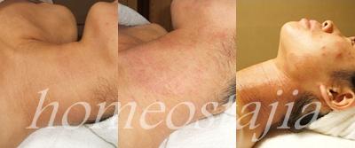 肌トラブル症例